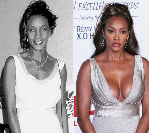 vivica-fox-plastic-surgery-before-and-after