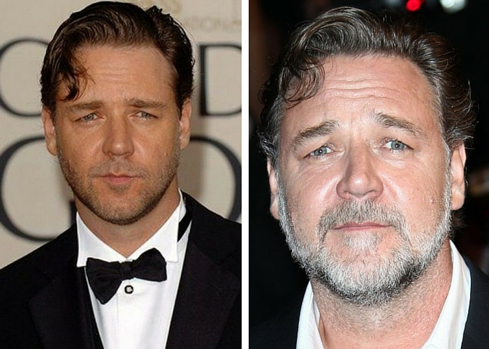 Celebs Who Aged Horribly - Then vs Now - Page 8 of 39 ...